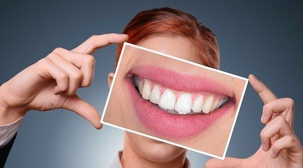 Los mejores productos de blanqueamiento dental